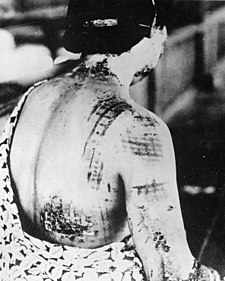 225px-The_patient's_skin_is_burned_in_a_pattern_corresponding_to_the_dark_portions_of_a_kimono_-_NARA_-_519686